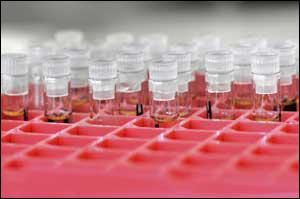 Hepatit C Testleri Nasıl Yorumlanır?