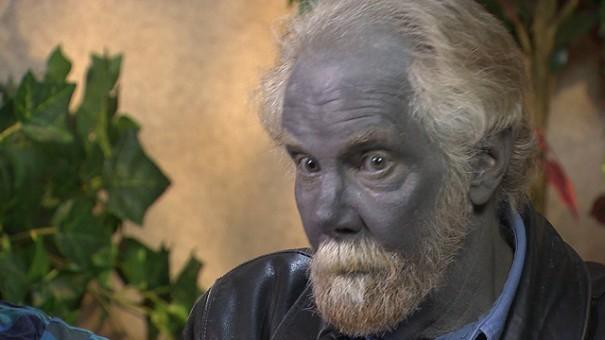 Argyria Hastalığı: 'Mavi İnsanlar' Nedir?