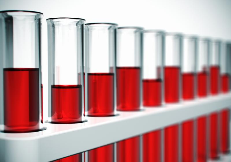 Hepatit B Tanısında Hepatit B Testleri Nasıl Yorumlanır?