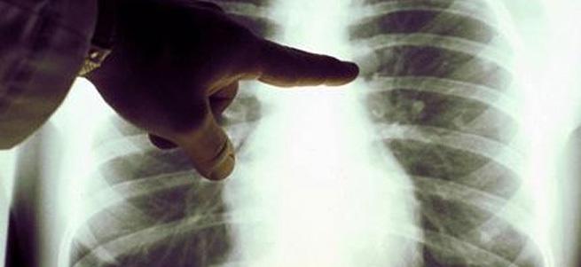 Akciğerlerin Su Toplaması Nedenleri ve Tedavisi