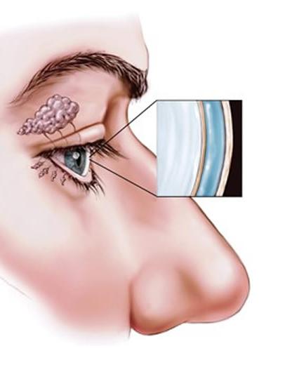 Kuru Göz Sendromu Nedir?