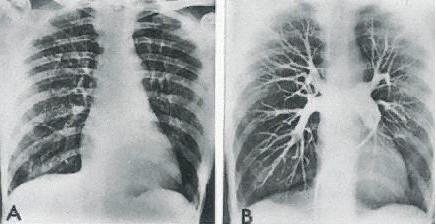 Akciğer Embolisi Nedir?