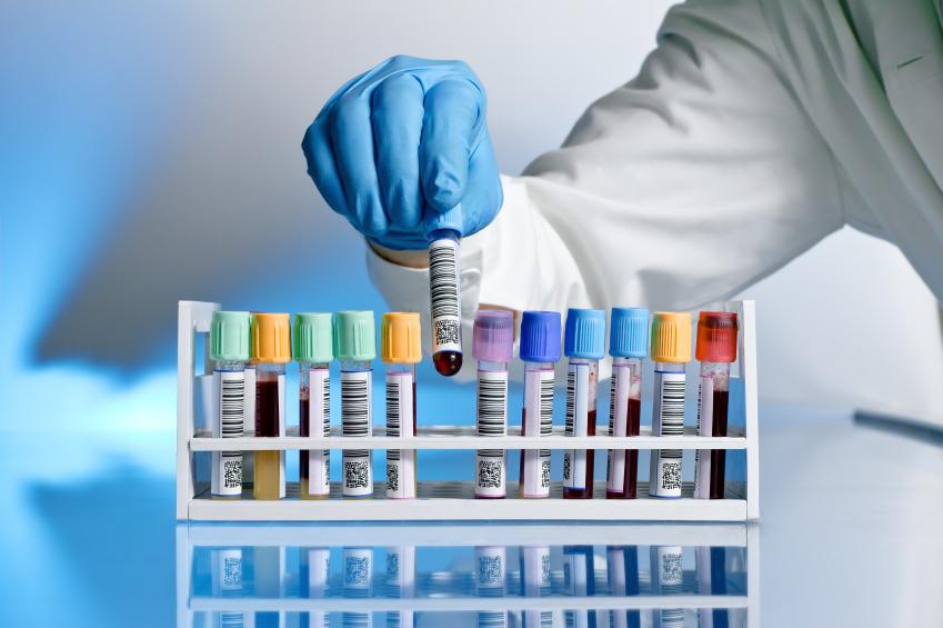 Ürik Asit Testi Nedir? Yüksekliği, düşüklüğü ve kullanım alanları