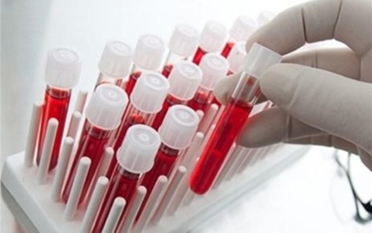 Hangi Kan Grubu Hangi Kansere Yatkındır?