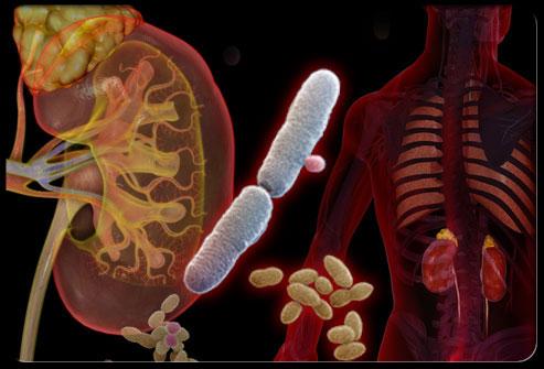 İdrar Yolu Enfeksiyonu Tanısı Nasıl Koyulur?