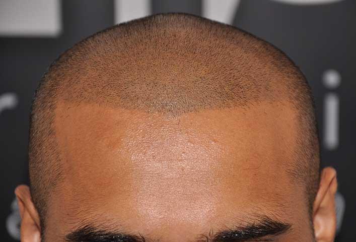 Saç Ekme Yöntemleri Nelerdir?