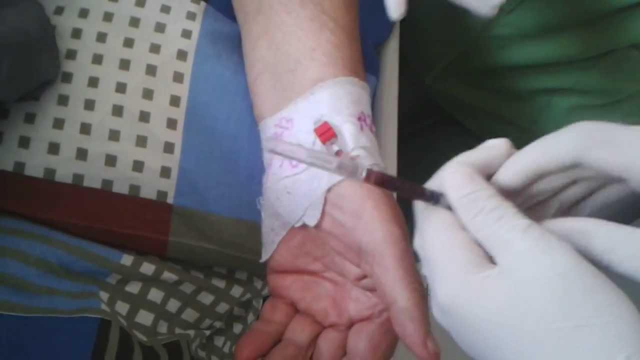 Kan gazı Parametreleri Nasıl Değerlendirilir?