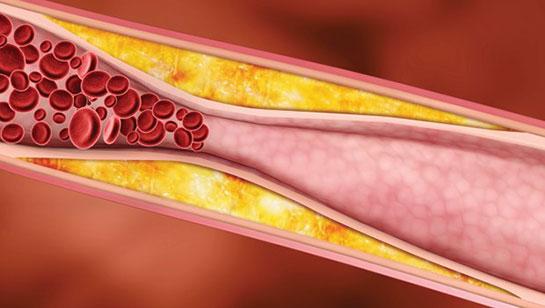 Kolesterol Nedir? Tedavisi Nasıldır?