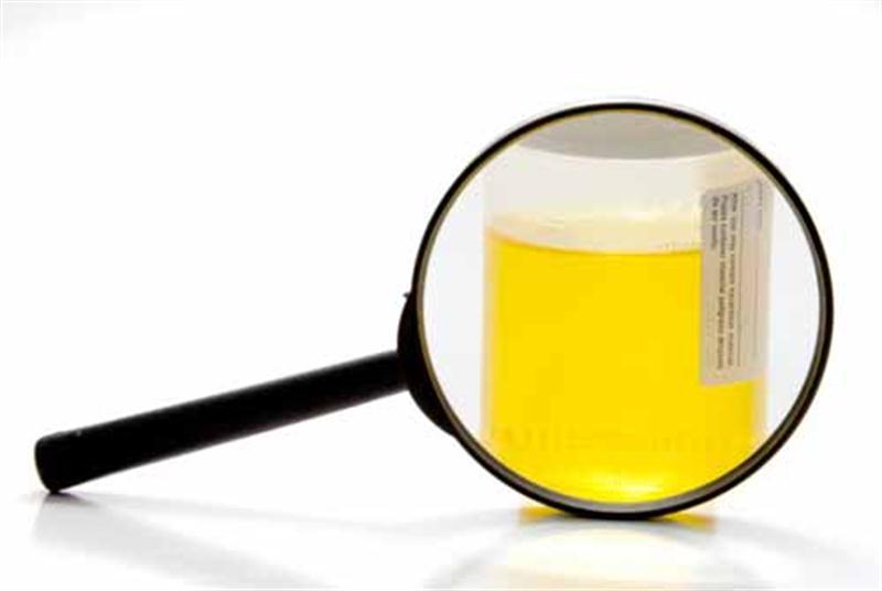 İdrar Rengi Hastalıkların Tanısında Önemli midir?
