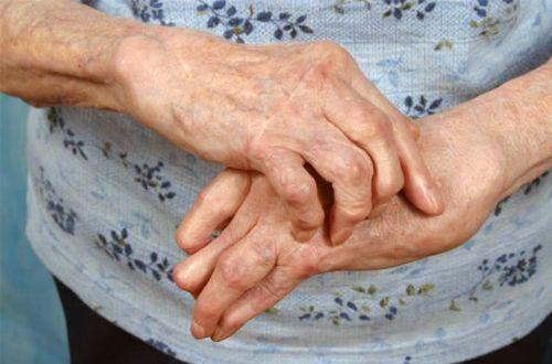 Sık Rastlanan Bir Hastalık Olan Artrit Nedir?