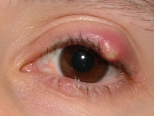Arpacık Göz Hastalığı Nedir?