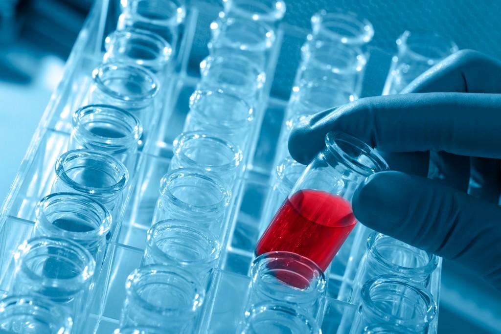 A'dan Z'ye Tüm Kan Tahlilleri, Laboratuvar Testleri ve Normal Değerleri Tahlil.com'da