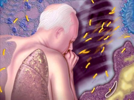 Akciğer Veremi Nedir? Verem Hastalığının Belirtileri Nelerdir?