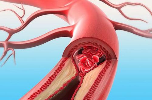 Kolesterol Yüksekliği-Hiperkolesterolemi Nedir?