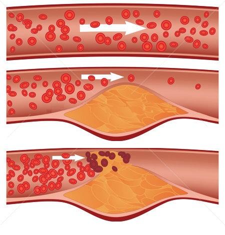 Kolesterol Yüksekliği: Kimler Kolesterol Testi Yaptırmalı?