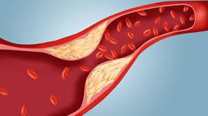 Kolesterol Yüksekliği Nedir? Kolesterol Testi Nedir?