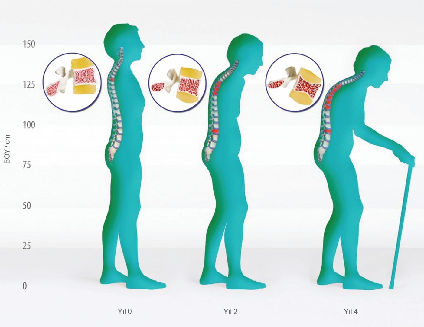 Osteoporoz Tanısında Kullanılan Tahlil ve Testler