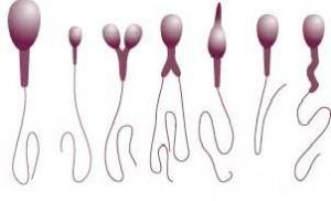 Sperm Testi (Spermiogram,Semen Analizi) Normal Değerleri