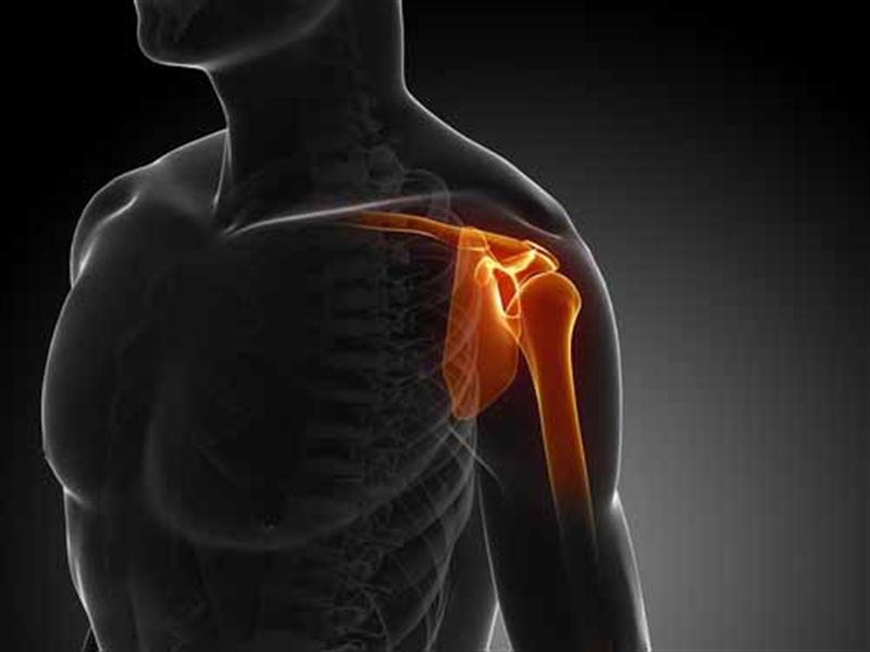 Torasik Outlet Sendromu ( omuz kapanı hastalığı) Nedir?