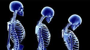 Kemik Erimesini Engellemek İçin Hangi Sporlar Yapılır?