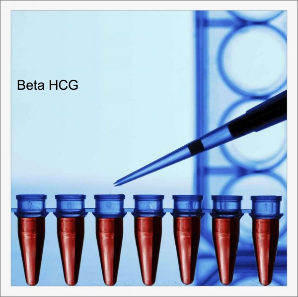 Beta HCG Testi: Beta HCG Değerleri Yorumlanması ve Hesaplanması