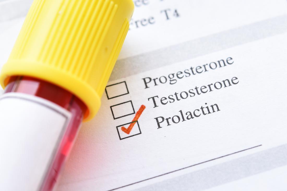 Prolaktin Testi Nedir? Prolaktin Yüksekliği Neden Olur?