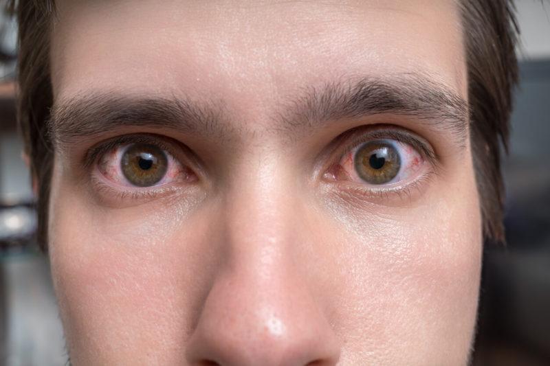 Alerjik Konjonktuvit Nedir? Sebepleri Nelerdir ve Nasıl Önlenir?