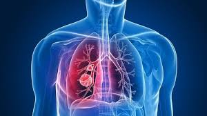 Akciğer Kanserinde İlk Belirtiler