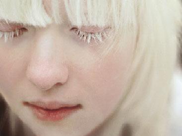Albinizm Nedir?