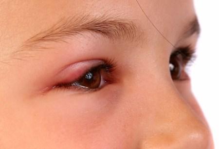 Blefarit Hastalığı ve Göz Bakımı
