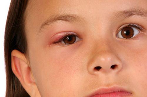 Gözde arpacık enfeksiyonu ile yüksek kan şekeri arasında ilişki vardır