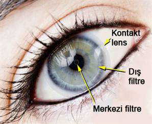 Kontakt Lens Nedir? Nasıl Görüş Sağlar?