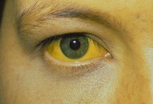 Hepatit ve Cilt Renginin Sarıya Dönmesi
