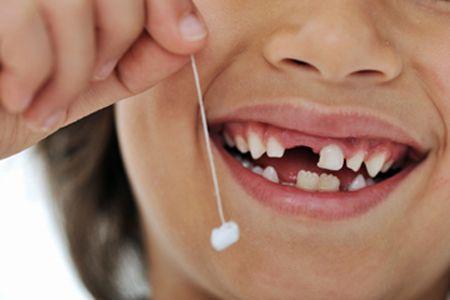 Süt Dişlerini Vaktinden Önce Çektirmeyin.