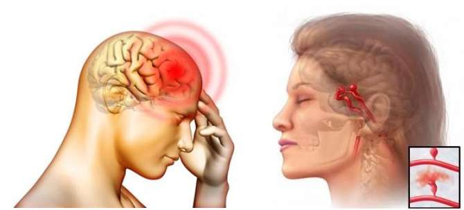 Beyin Felci Nedir ?
