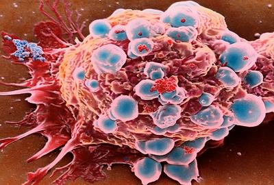 Kanseri Saptayabilen Tarama Testleri Nelerdir?