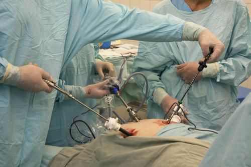 Obezite Cerrahisine Bağlı Hızlı Kilo Kaybı Kalp Krizini Tetiklemiyor