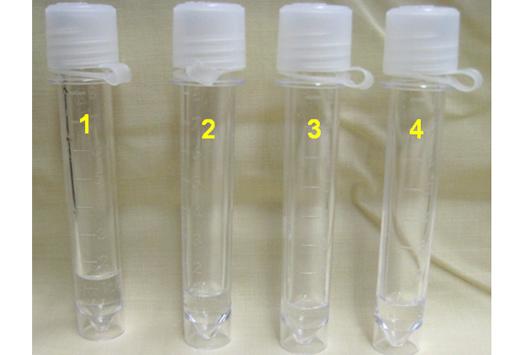 BOS'da (Beyin omurilik sıvısı) albumin testi nedir?