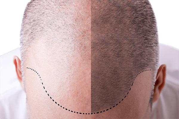 Saç Ekim Ameliyatı Öncesi Süreç