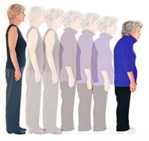 Osteoporoz Nedir? Tedavide Ne Önerilir?