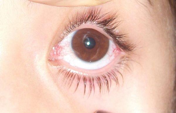 Göz Damarlarında Tromboz Nedir?