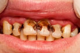 Önemsemediğimiz Diş Çürümesi Nedenleri