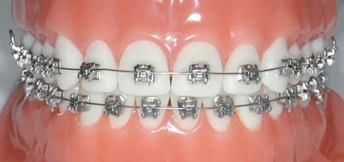 Ortodontik Diş Tedavisi Nedir?