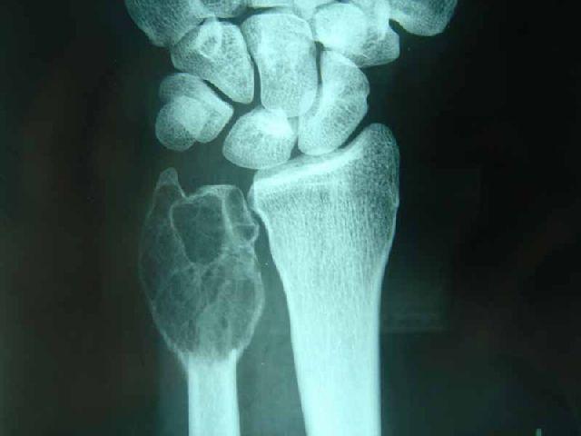 Kemik Tümörü Nedir?