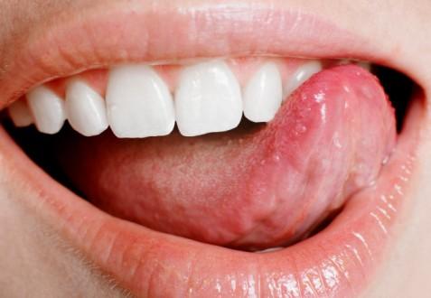Sabah Uyandığınızda Dilinizi Şişmiş Buluyorsanız Dikkat!