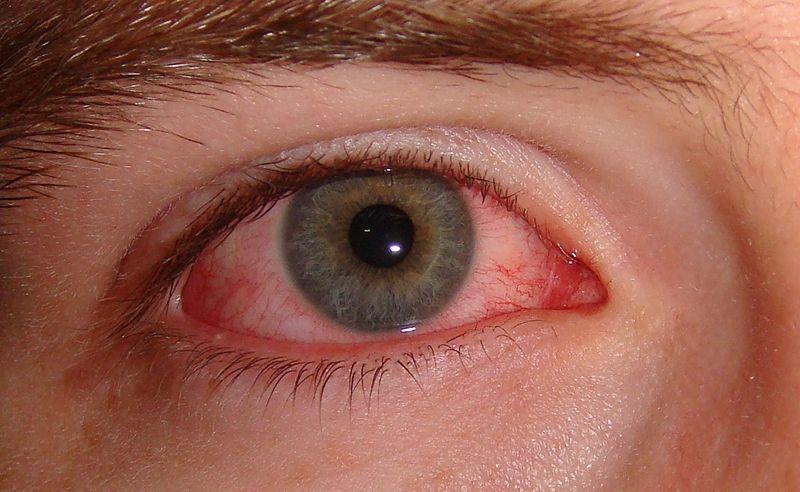 Göz Kuruluğu Belirtileri Nelerdir?