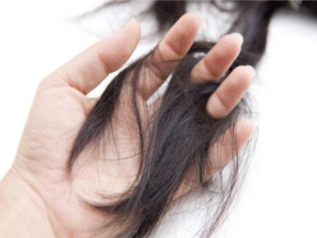 Saç Koparma Hastalığı (Trikotillomani) Nedir?