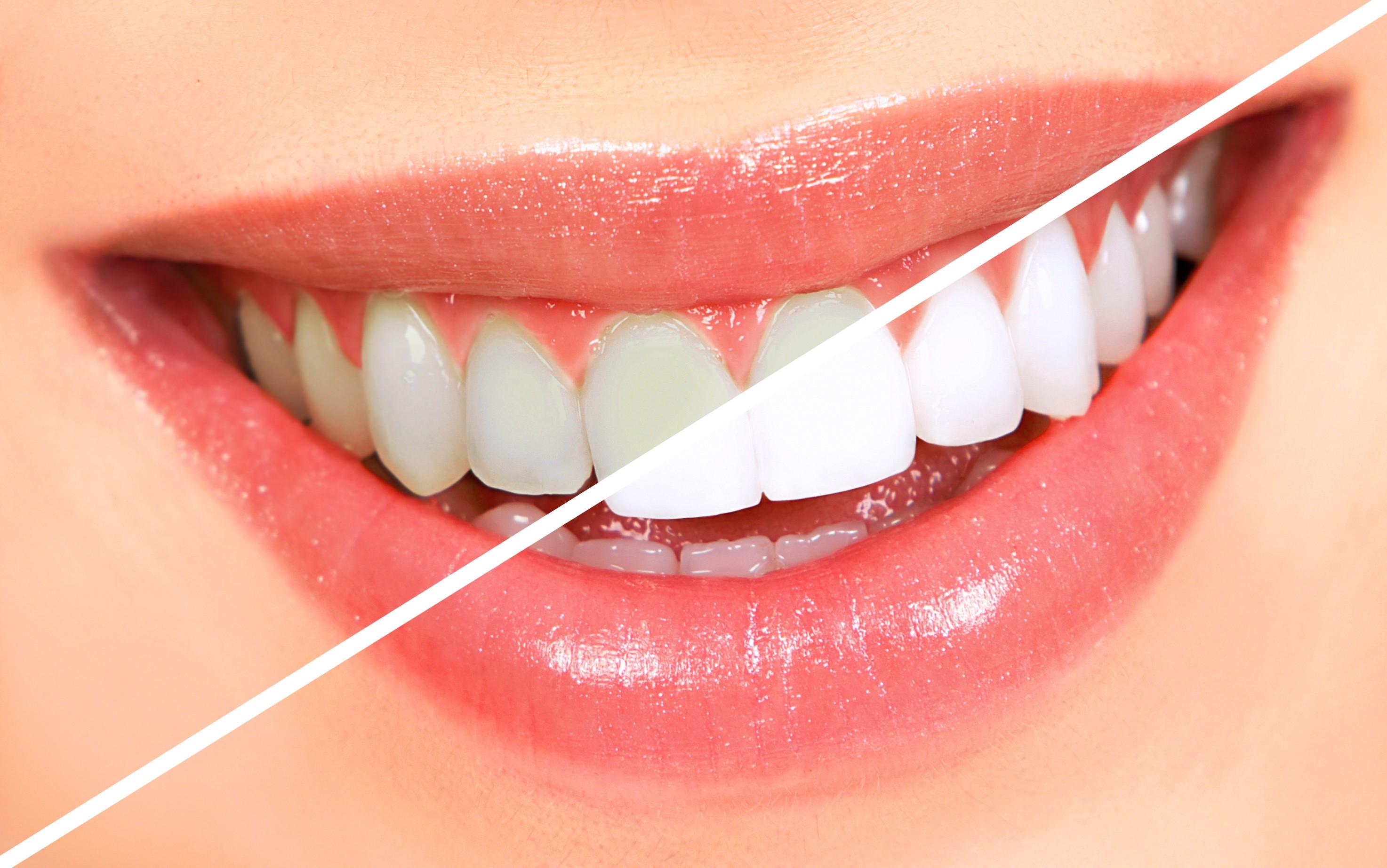 Dişleri Beyazlatmak İçin Ne Yapılabilir?