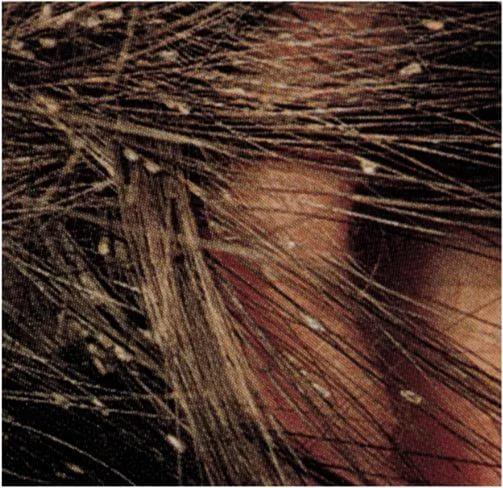 Saç Biti Nedir? Tedavisi Nasıldır?