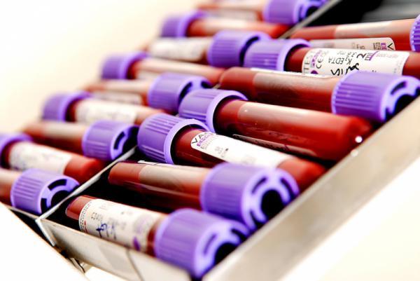 Biyokimya Kan Tahlili Parametreleri Nelerdir?